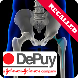 Ohio DePuy hip implant lawyers