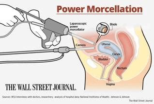 http://www.gblawyers.com/morcellator/css/power-morcellator-diagram.jpg